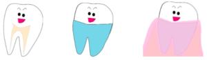 歯はセメント質というズボンのようなものをはいて歯肉にうまってます