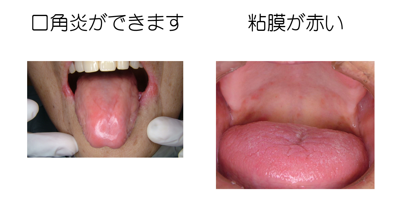 性 口内炎 カンジダ